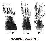骨の年齢による違い図