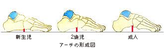 アーチの形成図