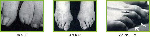合わない靴によって生じる障害